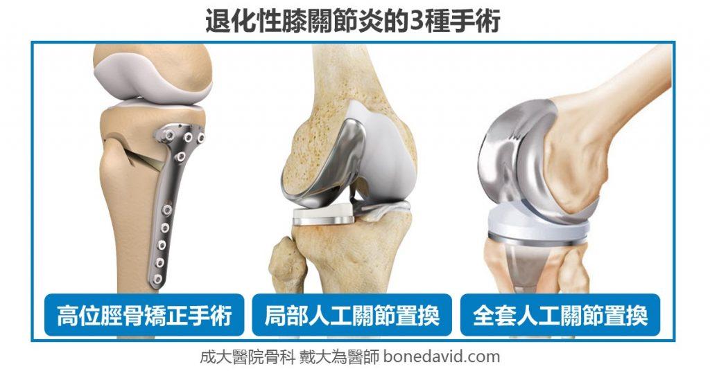 【客製化的膝關節炎治療】3種微創手術解決惱人的膝關節炎: 高位脛骨矯正手術、局部人工關節置換手術、人工關節置換手術(人工膝關節) 權威