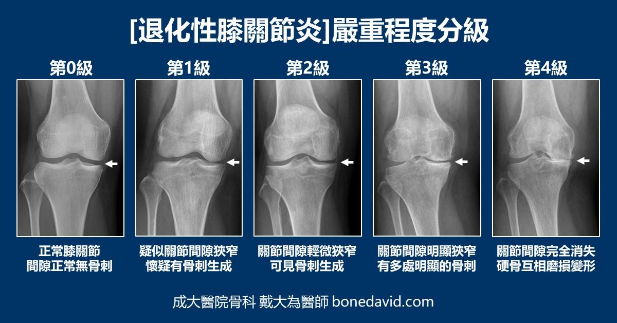 骨 上 骨折 顆 大腿