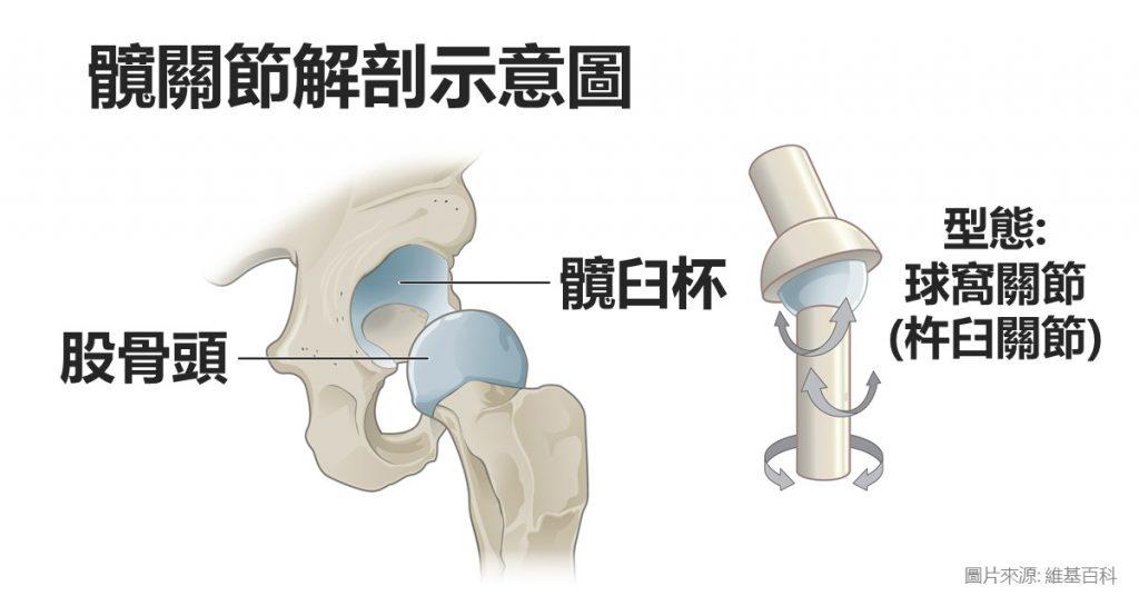 髖關節疼痛的原因: 退化性髖關節炎、股骨頭壞死、缺血性壞死、創傷後關節炎、髖關節發育不良。 嚴重需考慮微創人工髖關節手術。