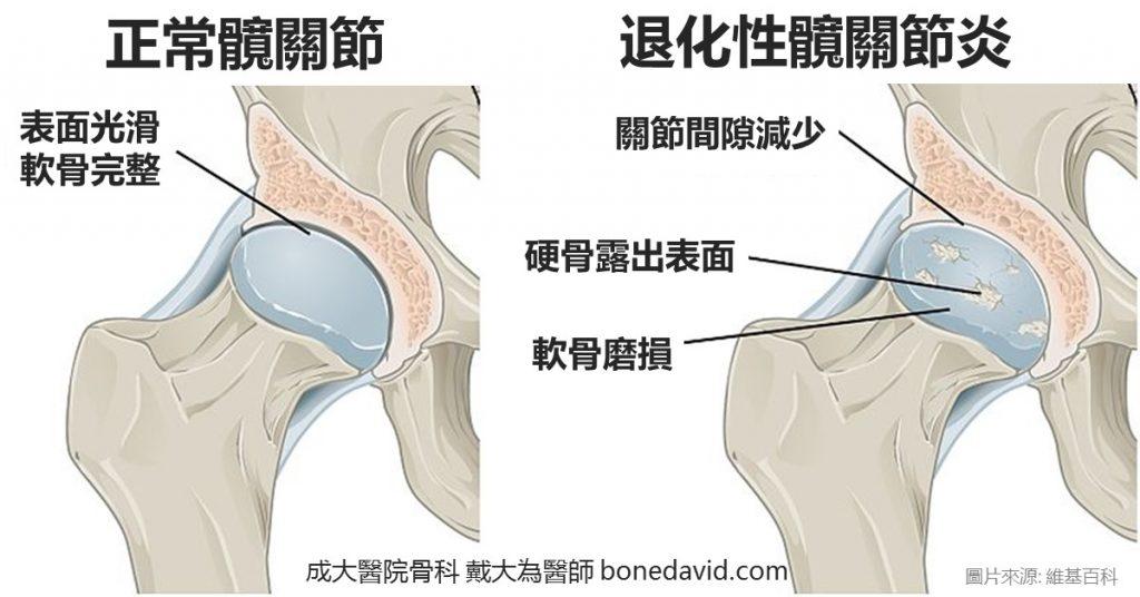 髖關節疼痛的原因: 退化性髖關節炎、股骨頭壞死、缺血性壞死、創傷後關節炎、髖關節發育不良。 嚴重需考慮微創人工髖關節手術。 微創人工髖關節手術:材質、手術過程與術後恢復 陶瓷人工髖關節